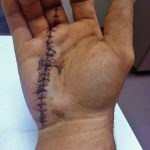 Fox Sports: Fighter's hand severed in half after construction accident